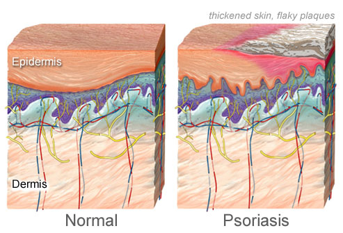 getty_rm_photo_of_illustration_of_psoriasis